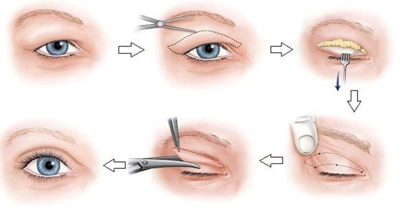 Kỹ Thuật Cắt Mí Mắt Là Gì?   Cắt mắt hai mí   Guides